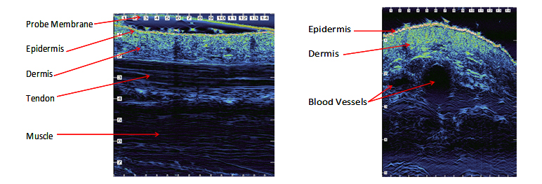 hrus image tendon blood vessels
